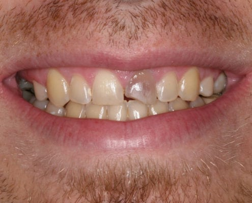 Before - Cosmetic - Tooth Discoloration