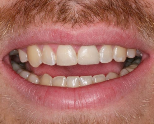 After Picture Cosmetic Dentistry